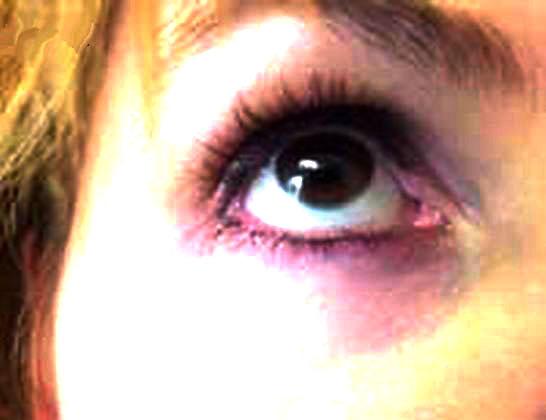 Как быстро убрать гематому под глазом в  360